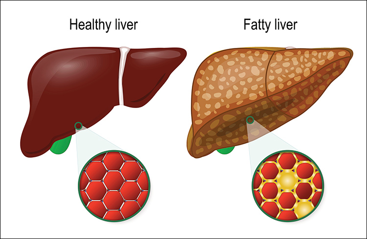 Illustration of healty vs. fatty liver
