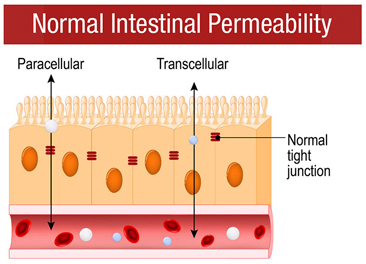 Illustration of what a normal inestinal gut looks like