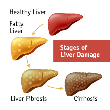 Illustration showing stages of liver damage